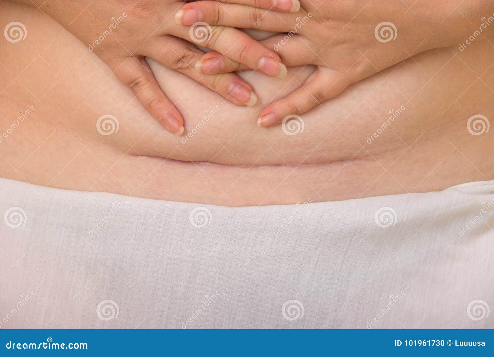 C Section Cesarean Operation Heal After. A Cesarean Scar A ...