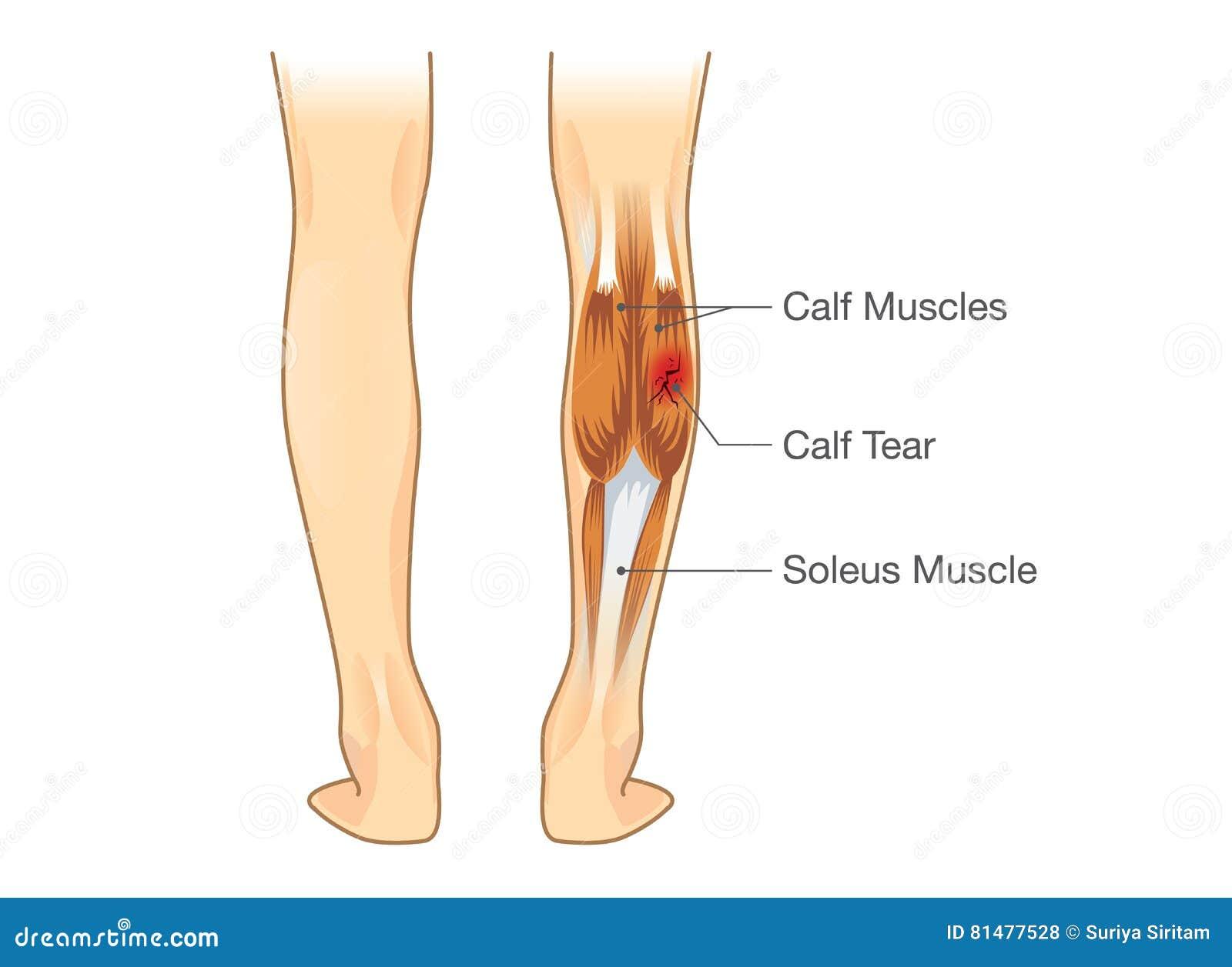 Calf Muscle Tear Stock Vector Illustration Of Illustration 81477528