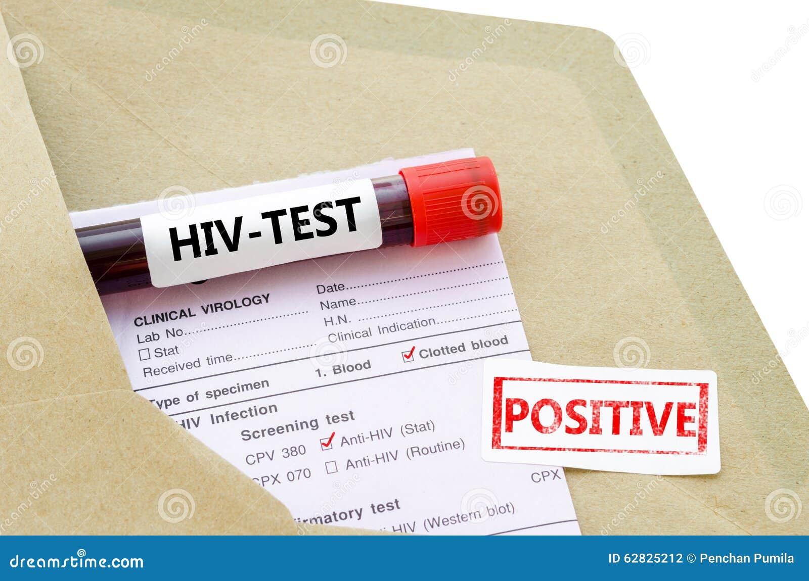 Incontri Single HIV positivi