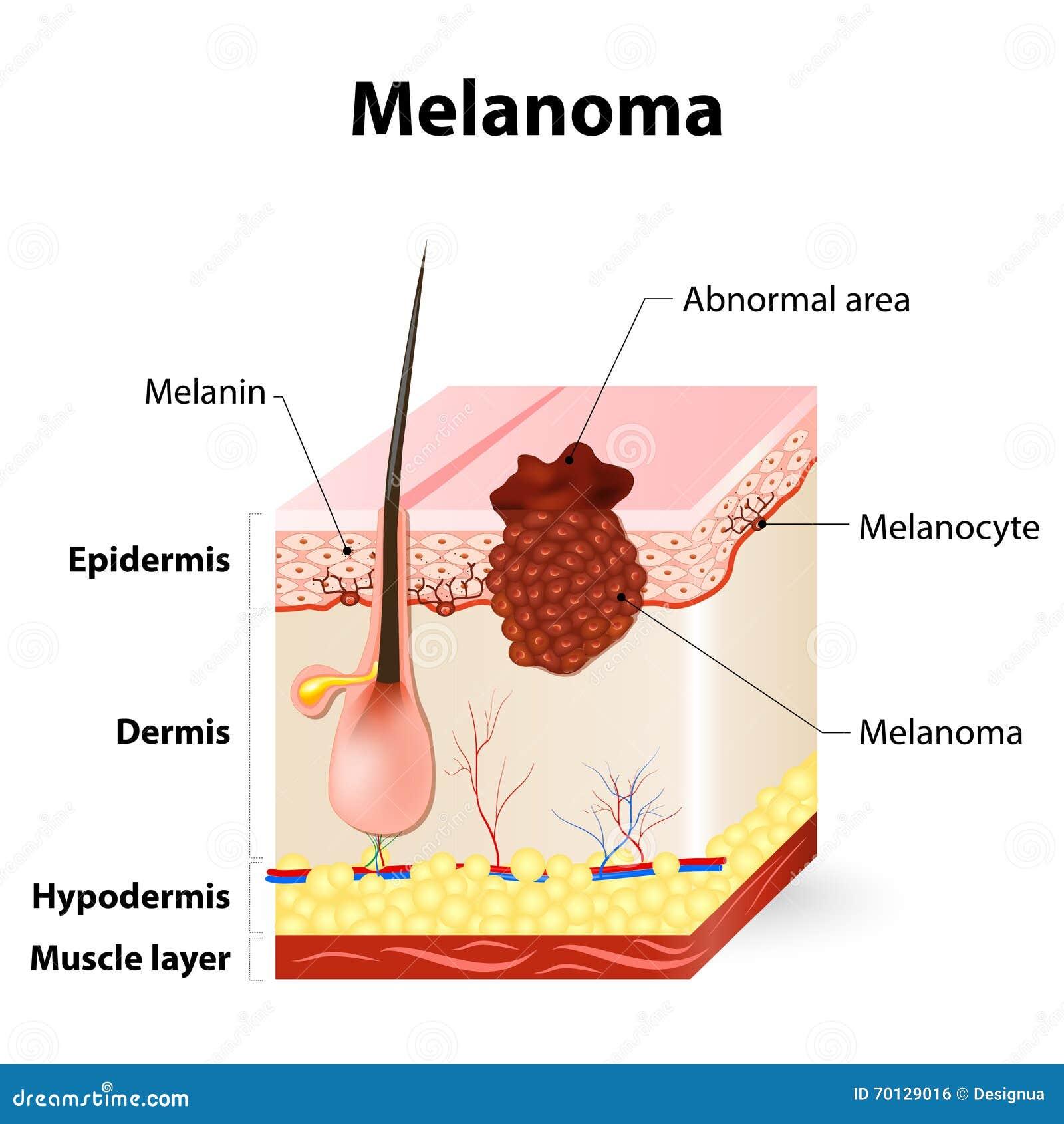 Cancer de la peau mélanome
