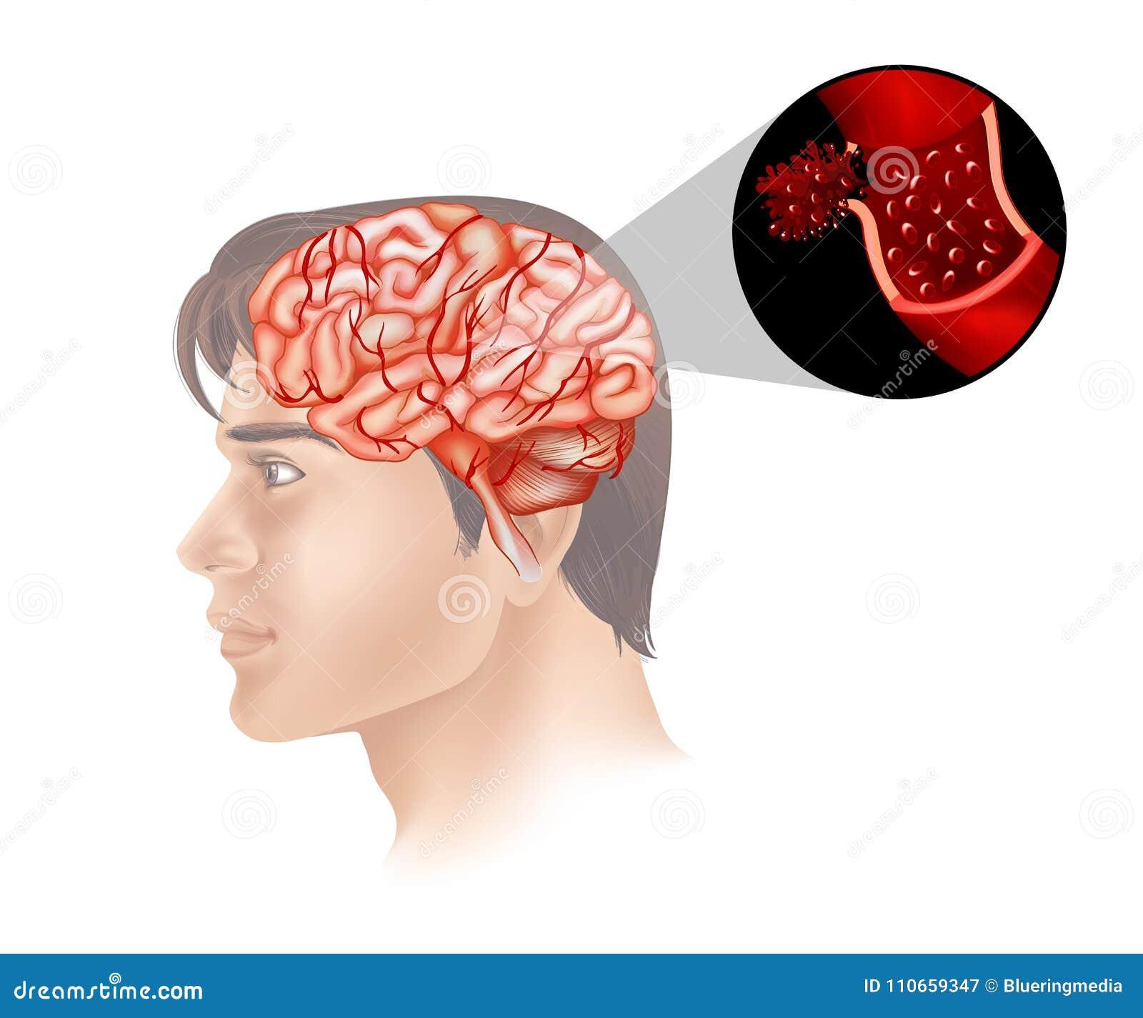 Cancer du cerveau dans l humain