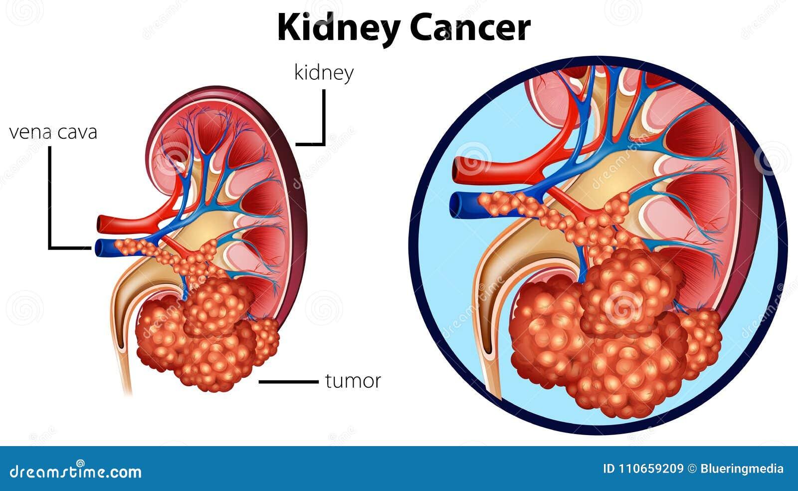 Cancer för diagramvisningnjure