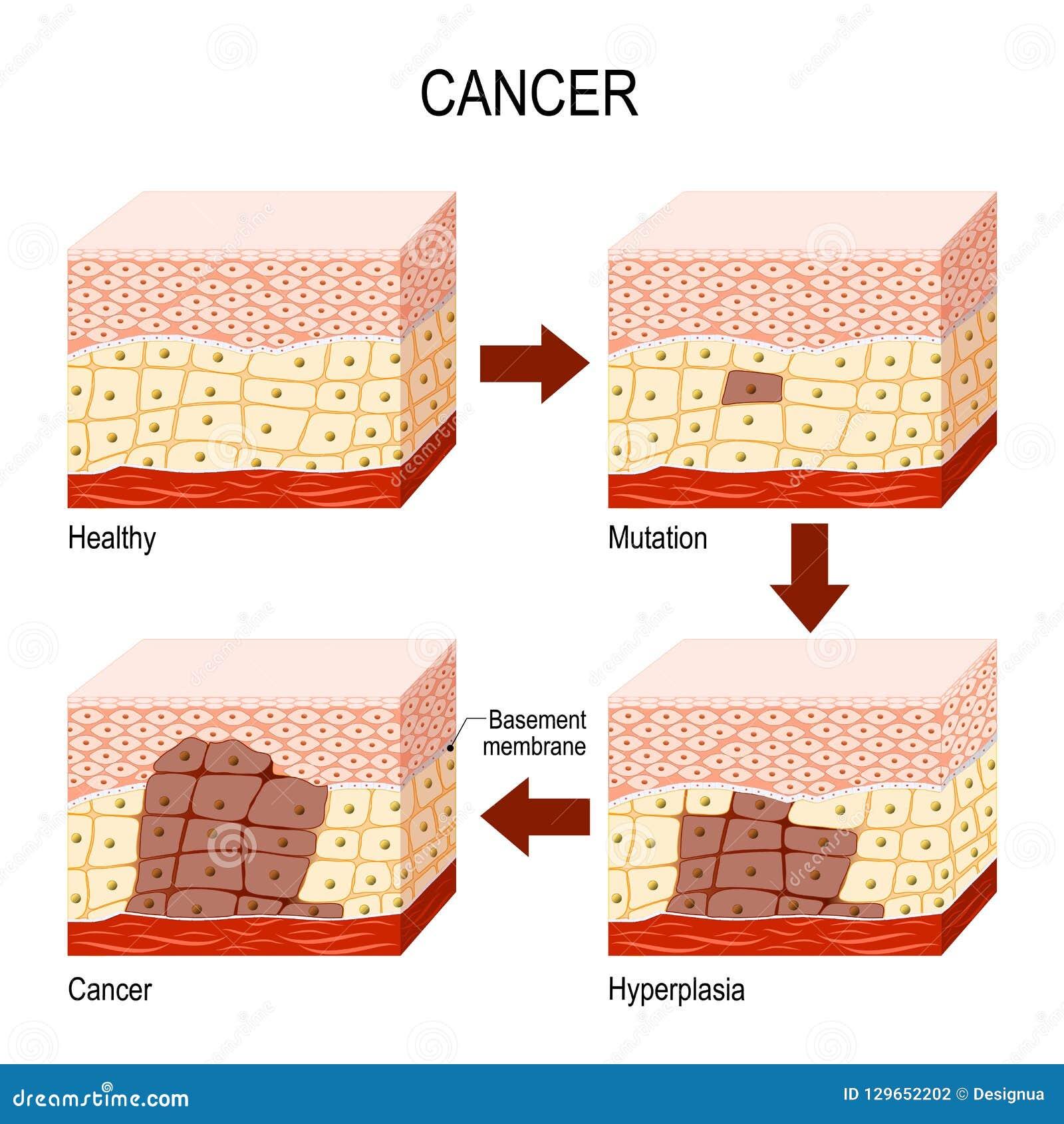 Cancer från normala celler till mutationen, hyperplasiaen och Malignan
