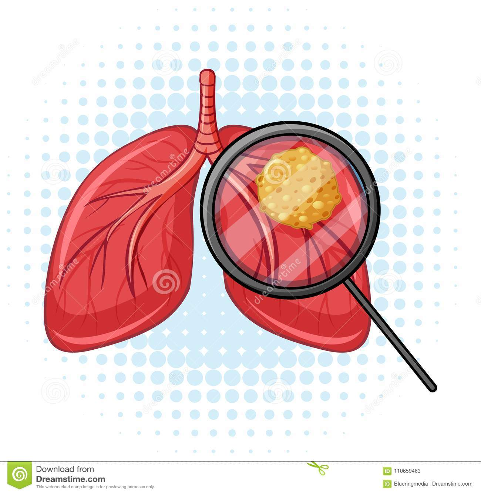 Cancer i mänskliga lungor