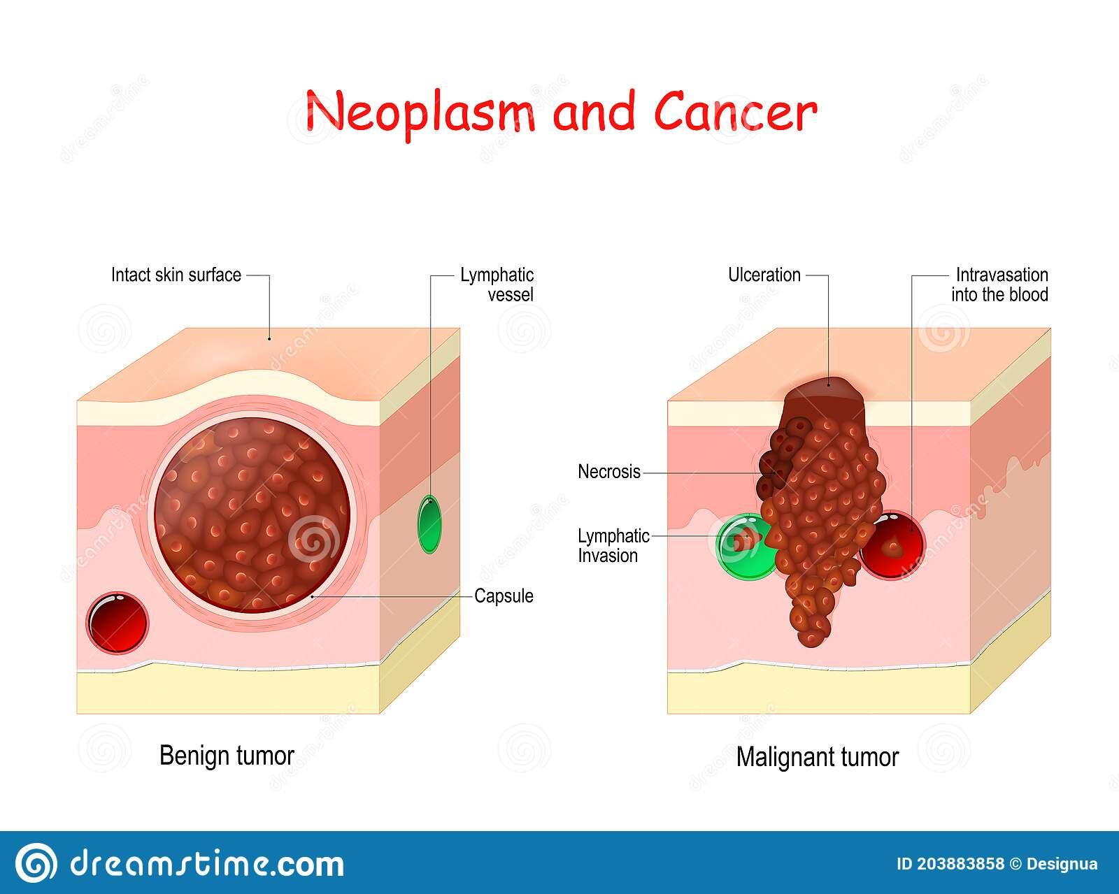 cancer is benign or malignant