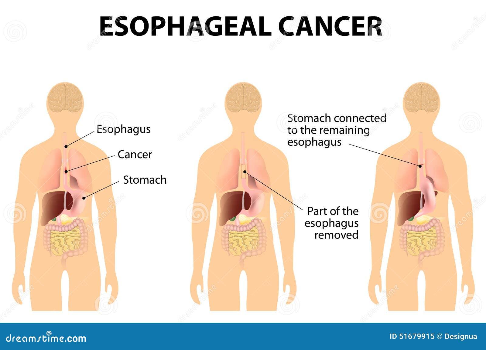 wat is oesophagus