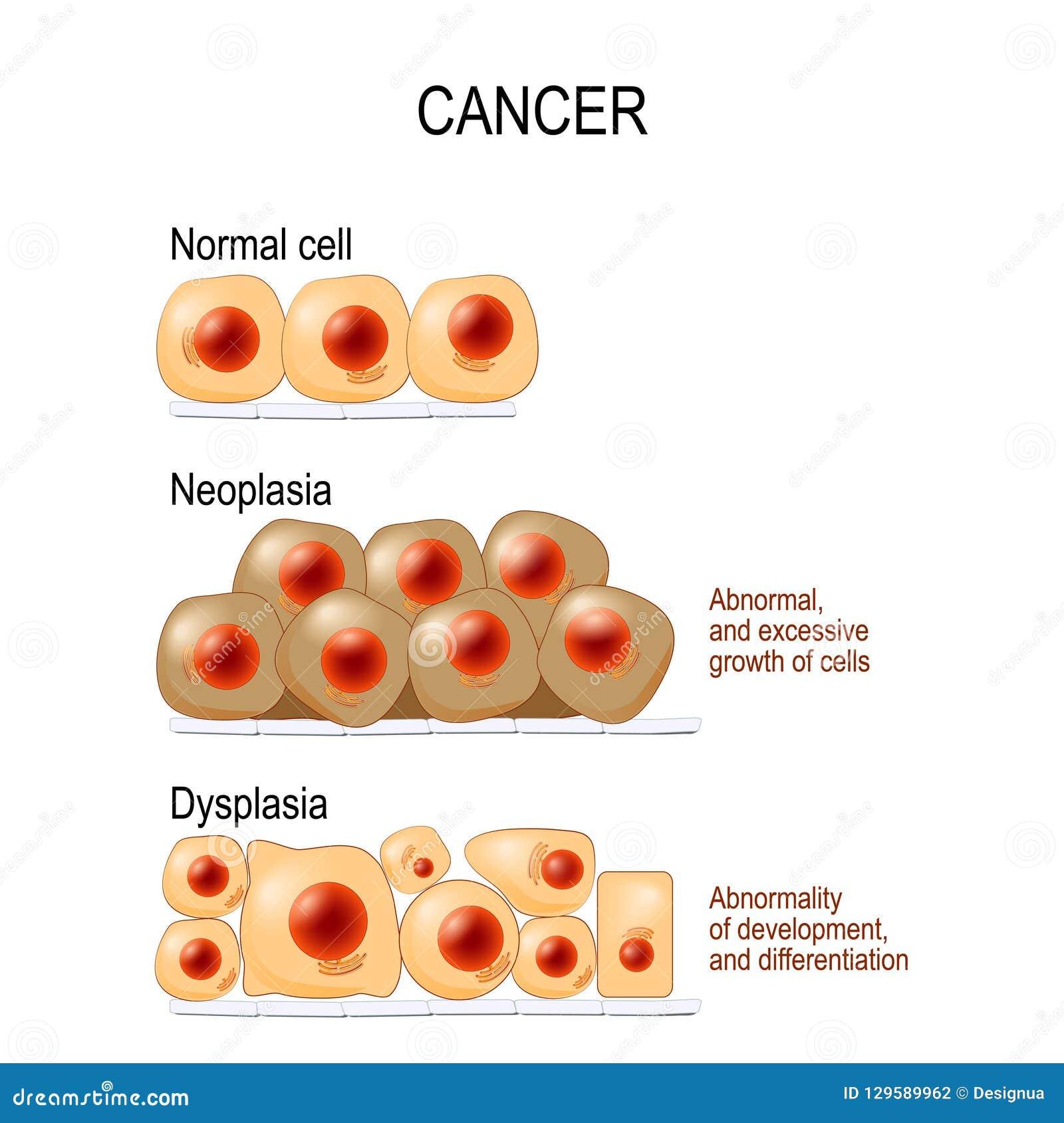 Cancer Pilhas, displasia, e neoplasia normais