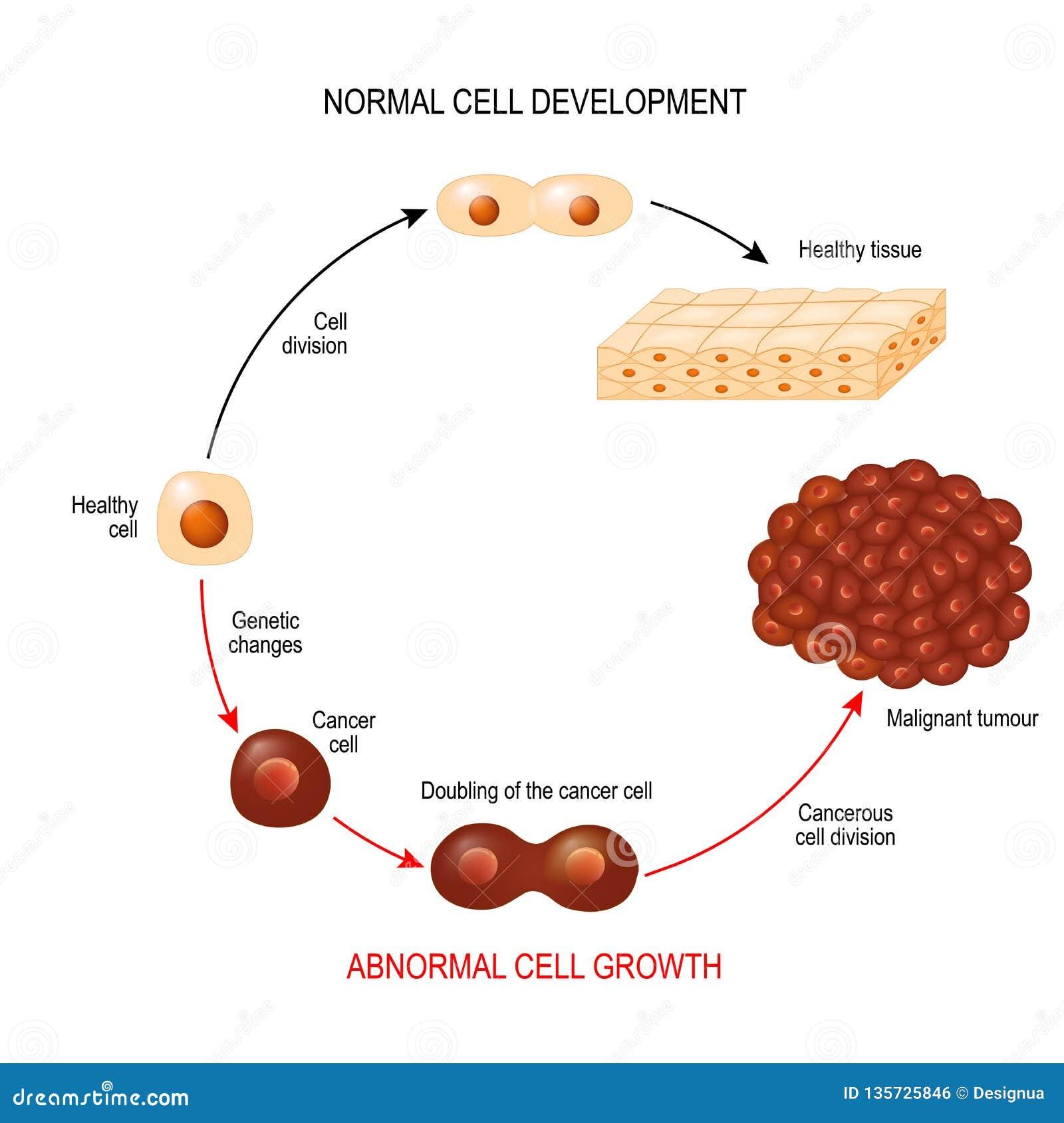 Cancercell utveckling för sjukdom för illustrationvisningcancer