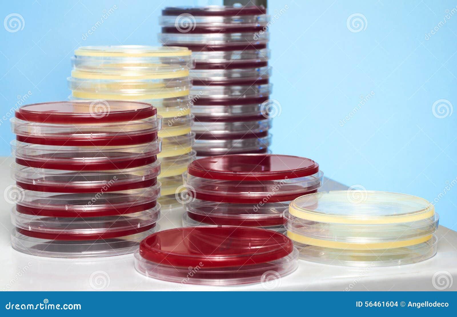 Banchi Da Lavoro Per Laboratorio Analisi : Capsule di petri impilate in banco da lavoro del laboratorio
