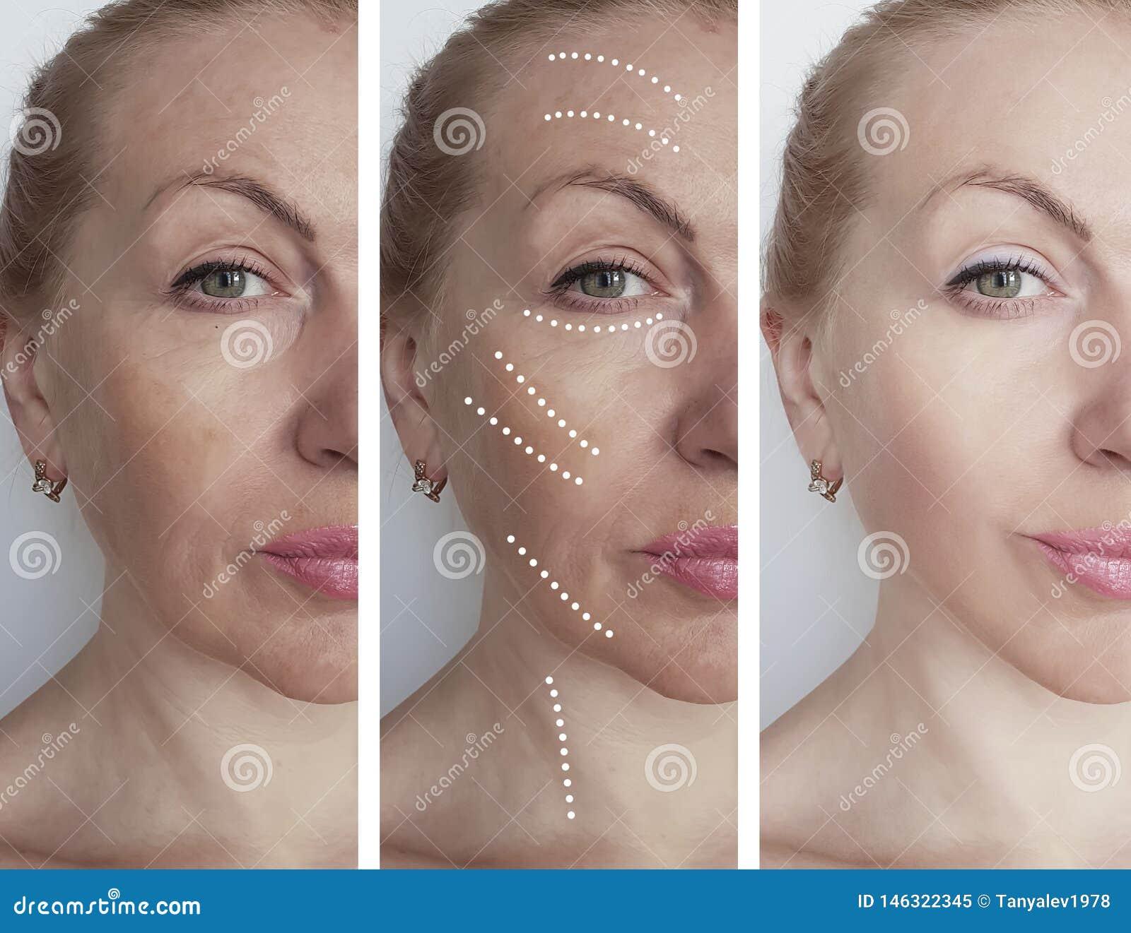 A cara da mulher enruga-se antes após procedimentos de hidratação da correção do biorevitalization do tratamento da terapia da re
