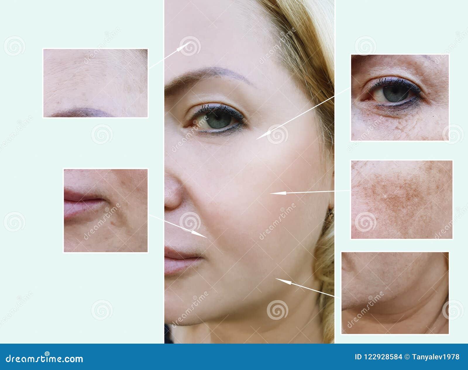 A cara da mulher enruga-se antes e depois dos procedimentos do envelhecimento, dermatologia da pigmentação