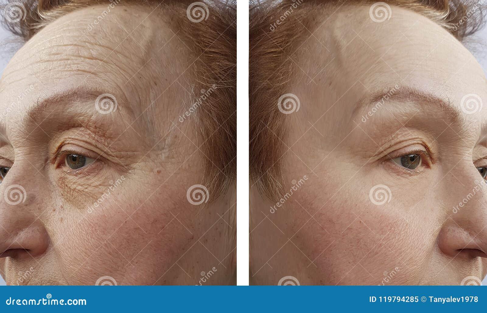 A cara de uma mulher das pessoas idosas enruga o procedimento da dermatologia antes e r aftetherapy