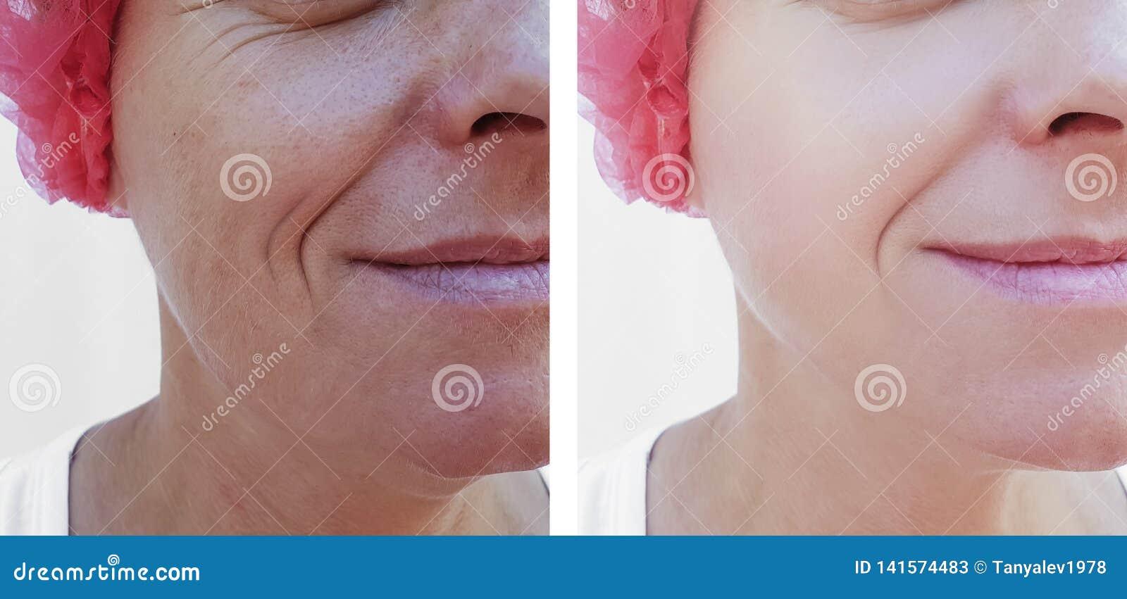 Cara de uma regeneração de levantamento da terapia da diferença da mulher mais idosa antes e depois dos tratamentos