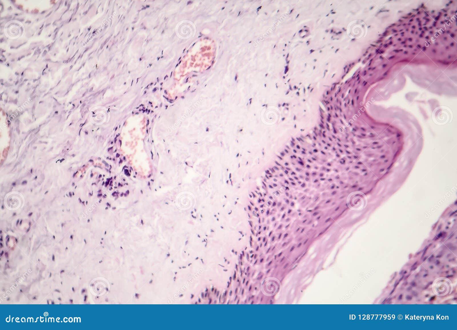 Carcinoma de la célula básica