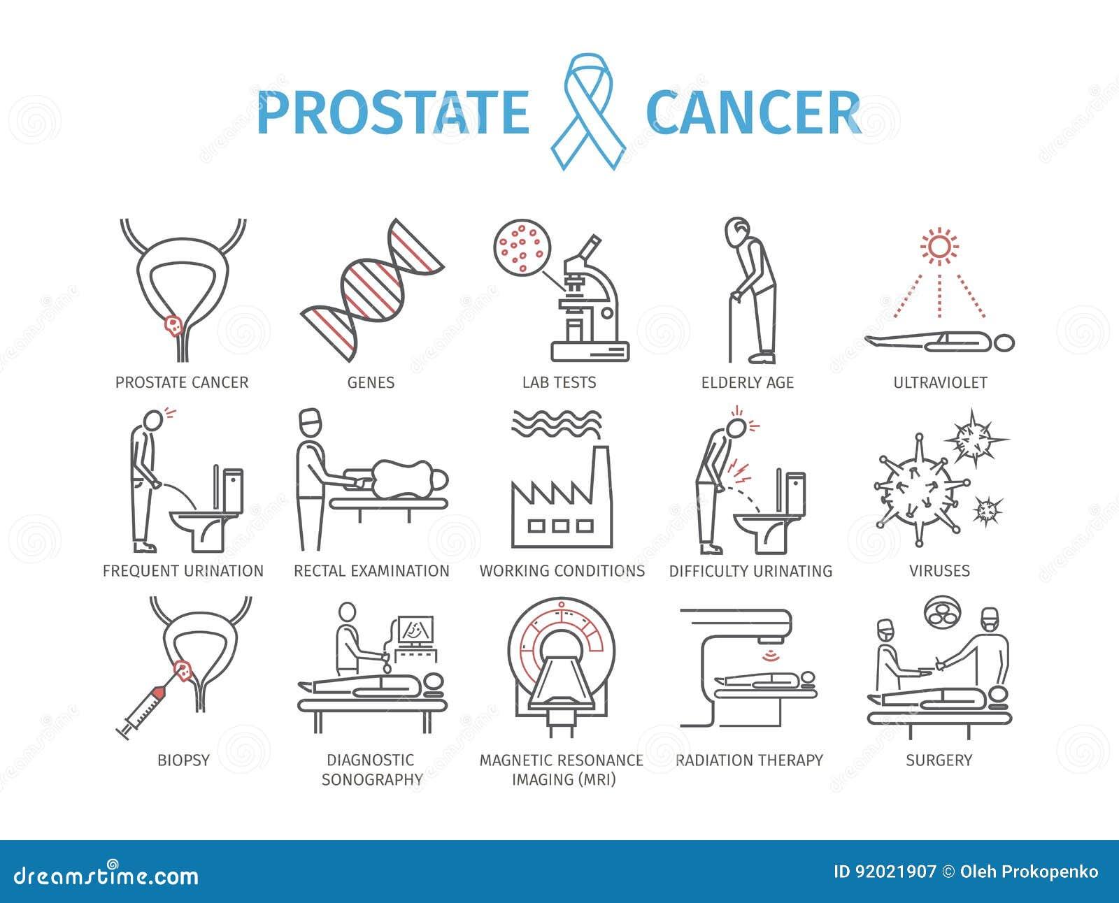 trattamento di diagnosi del carcinoma della prostata