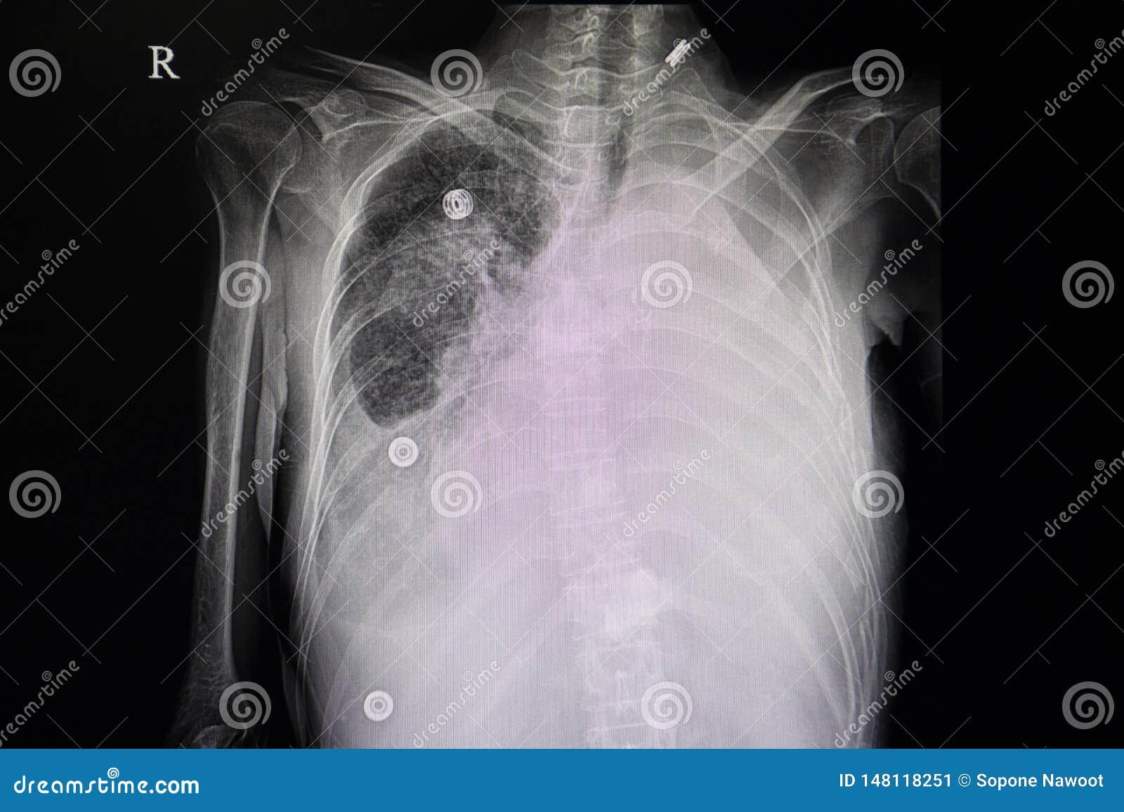 Carcinoma metastático del pulmón