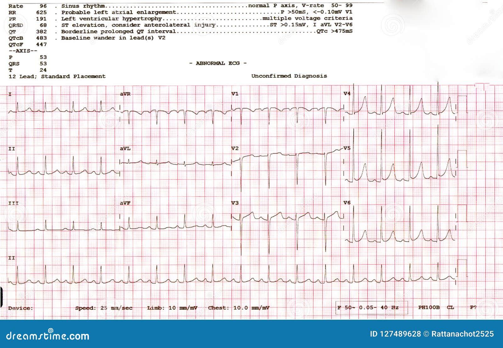 Cardiogram Waveform From An EKG Showing Abnormal EKG Test A