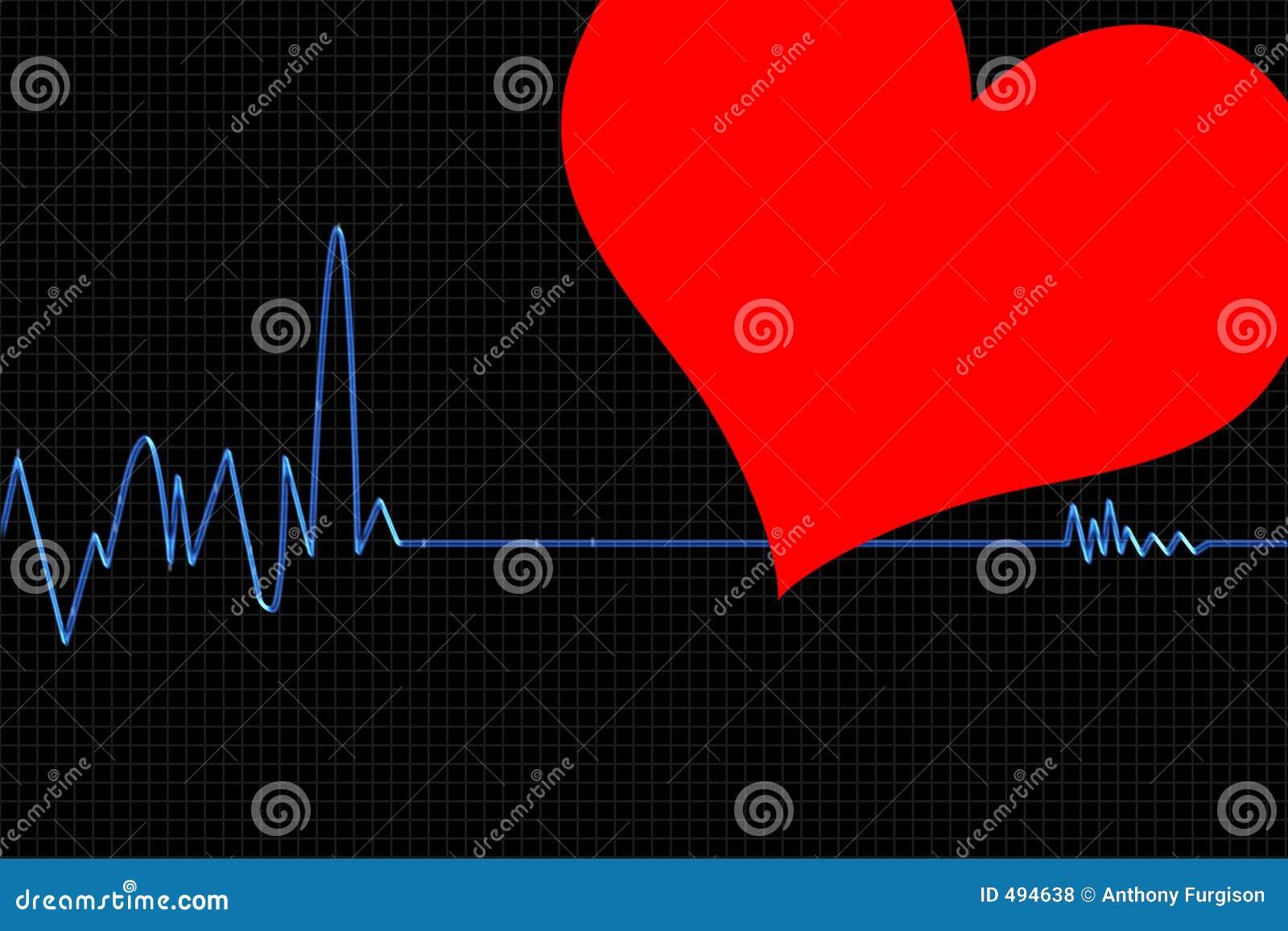 Cardiogram1