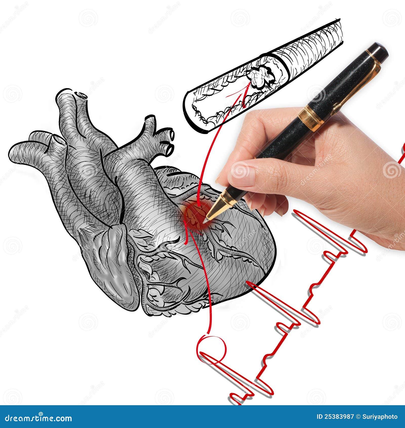 Cardiograma del ataque del corazón y de los golpes de corazón