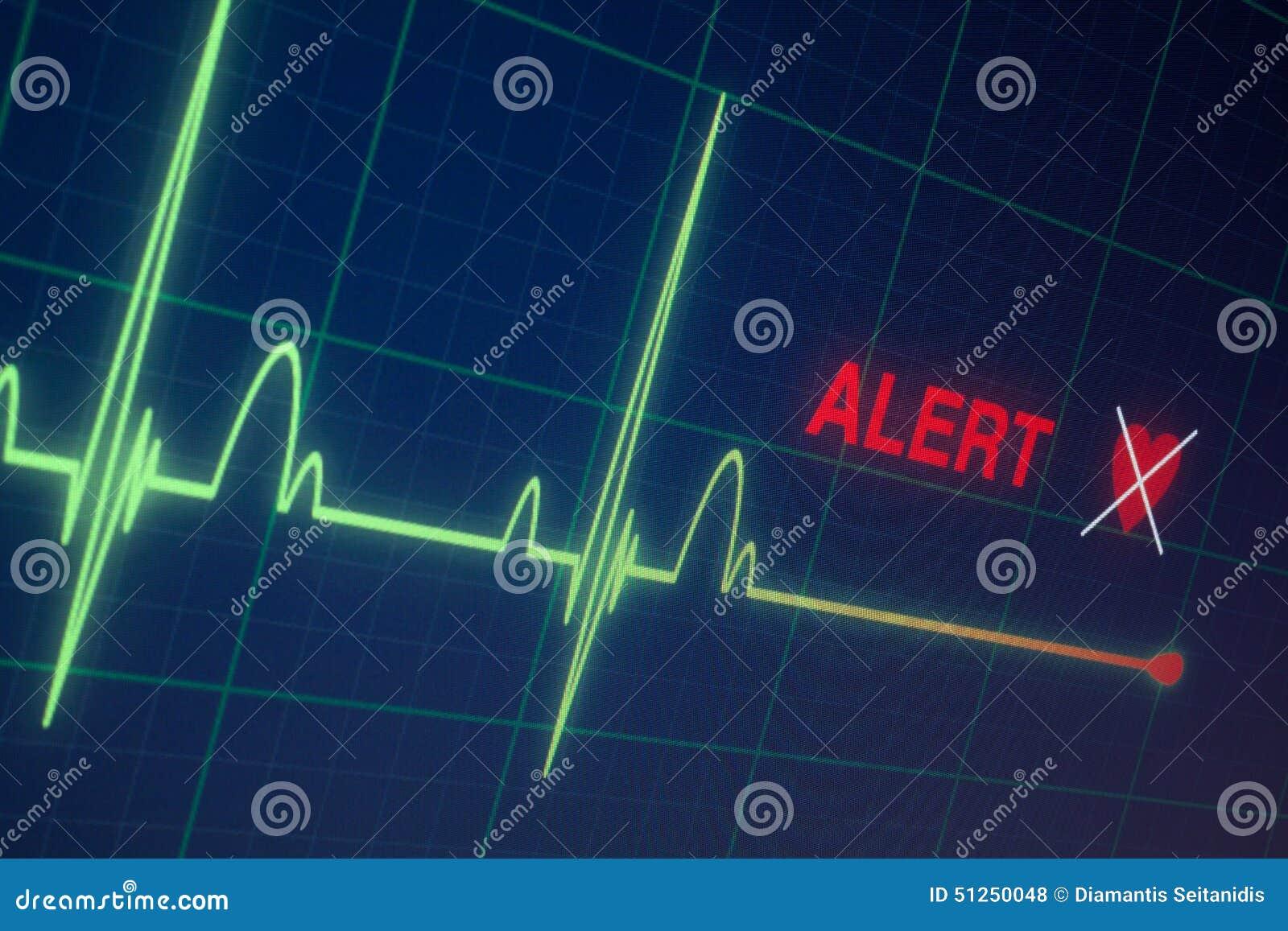 Cardiogramme de battements de coeur sur le moniteur