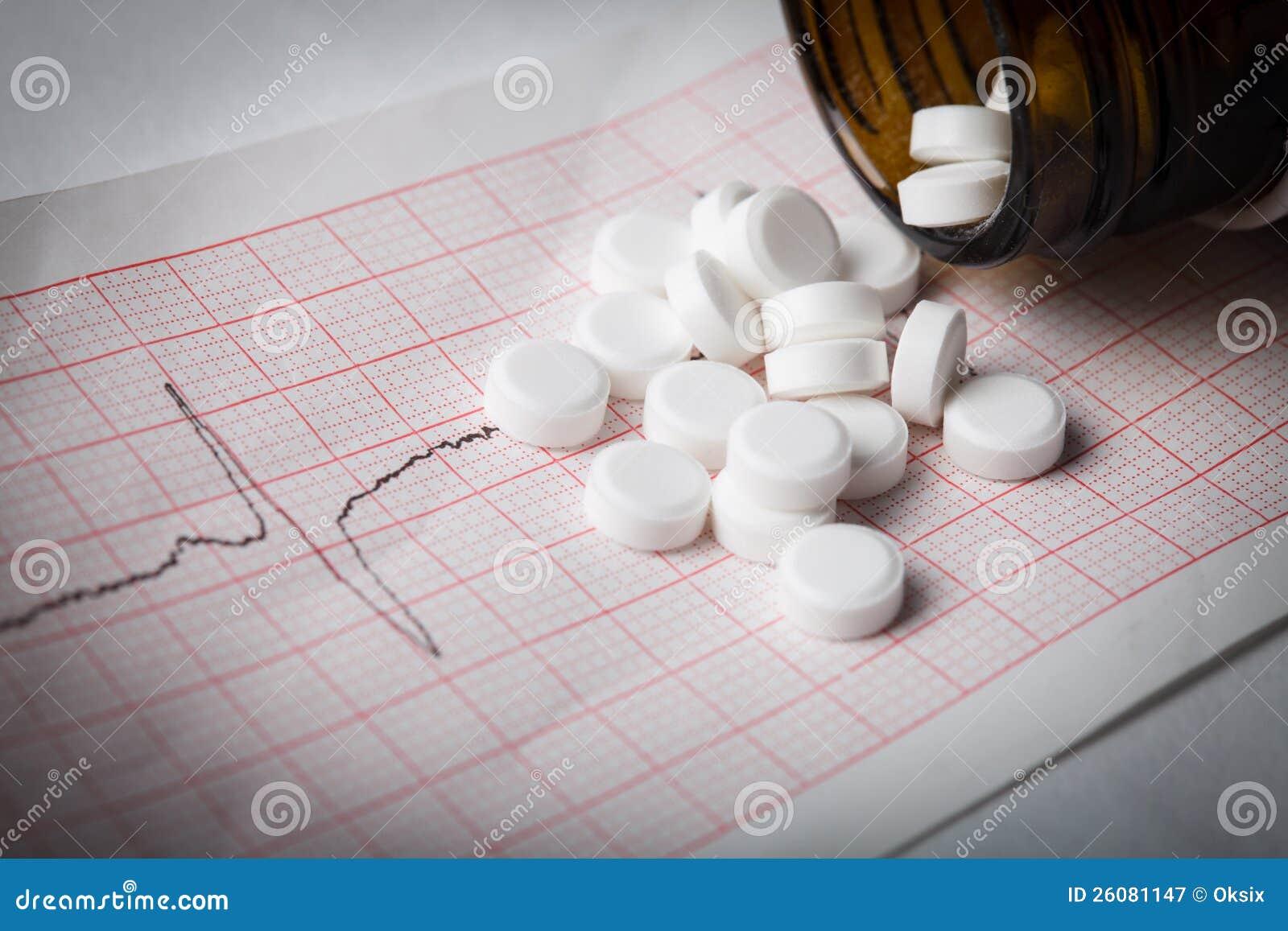 Cardiogramme et nitroglycérine