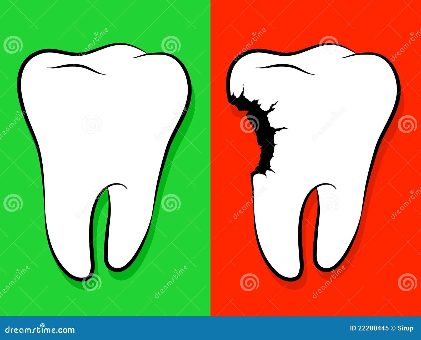 Carie saine et malsaine de dessin anim de dent photo - Dessin de dent ...
