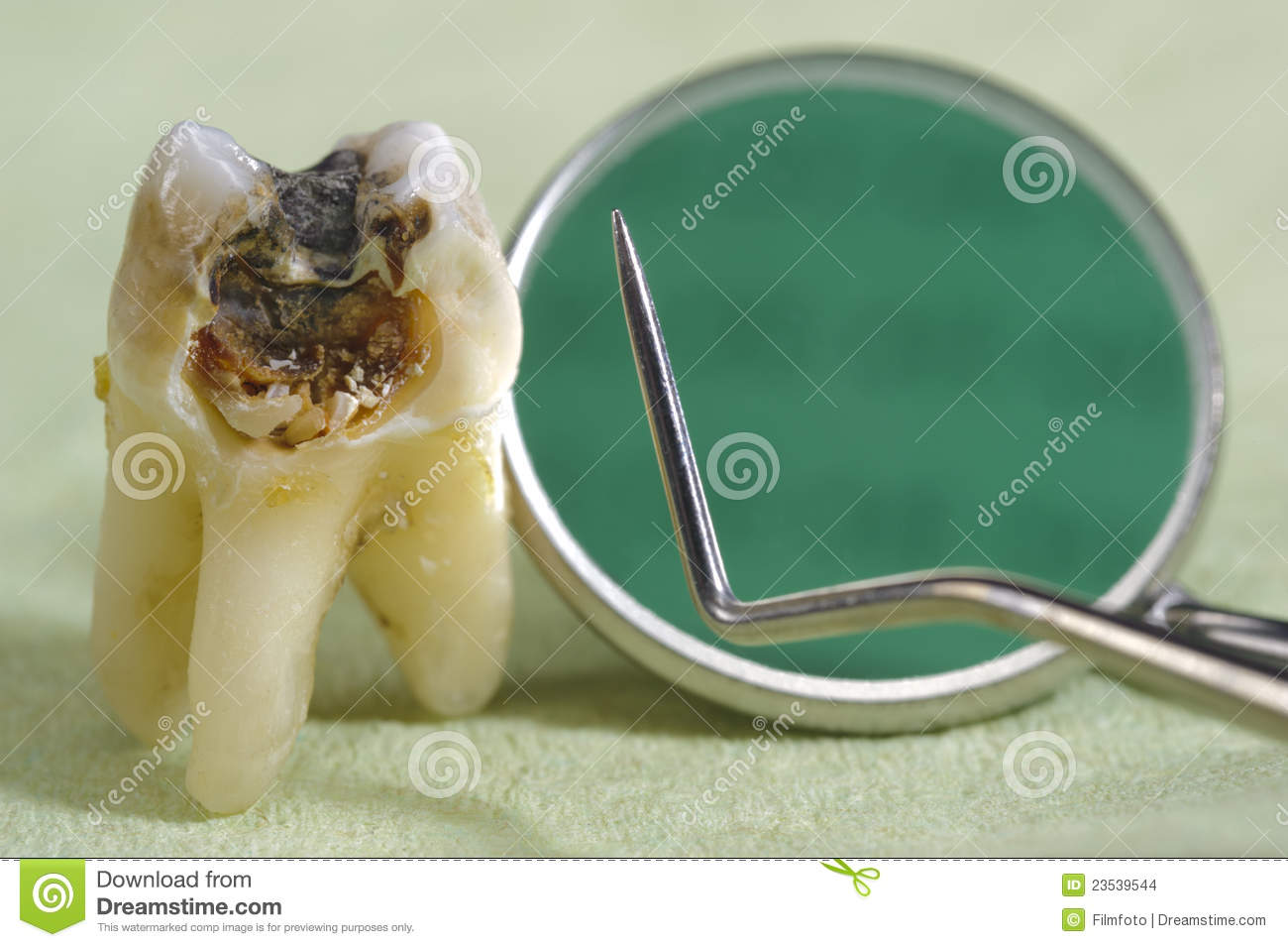 Caries On Tooth Stock Images - Image: 23539544