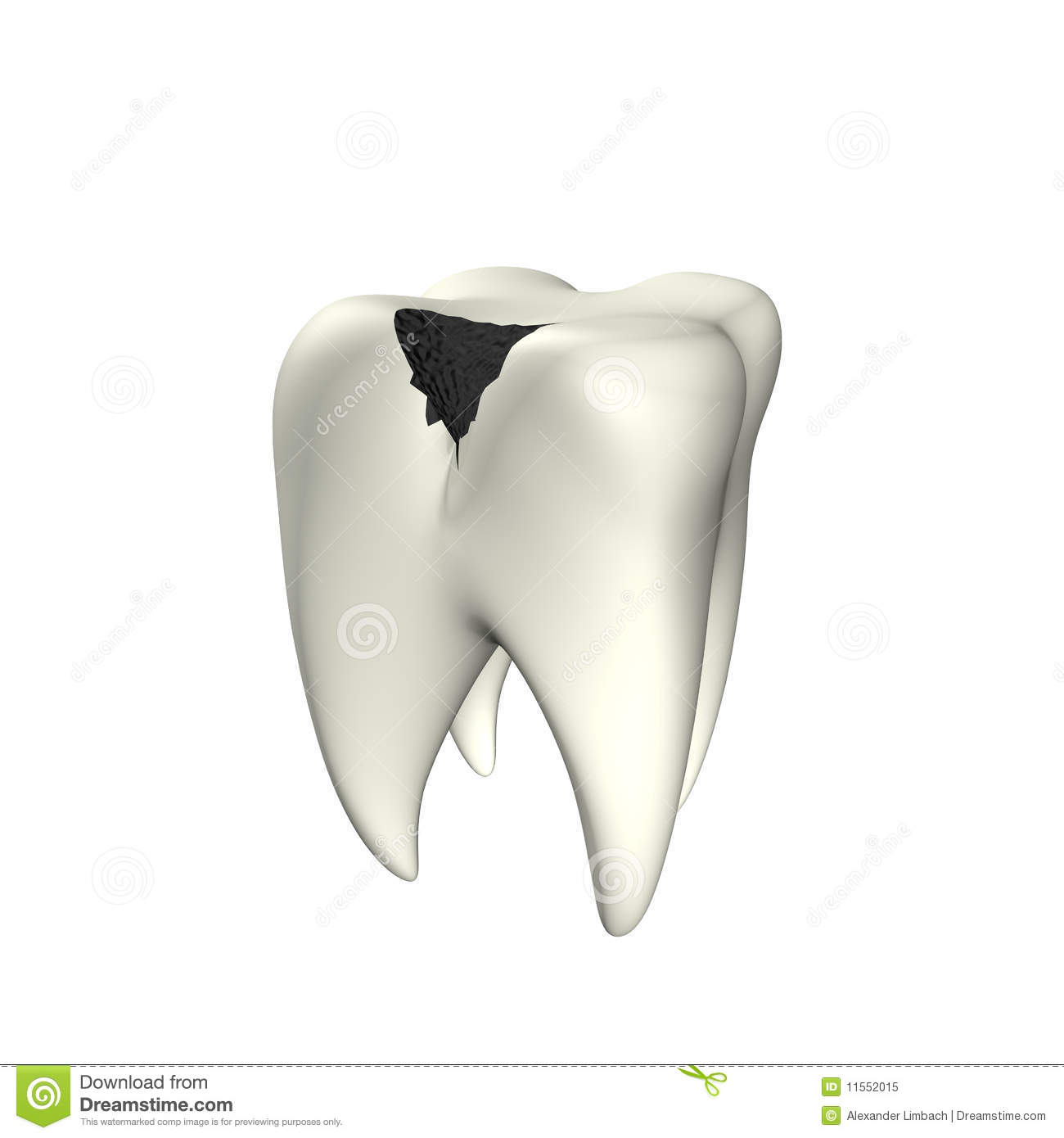caries tooth 3d stock illustration illustration of