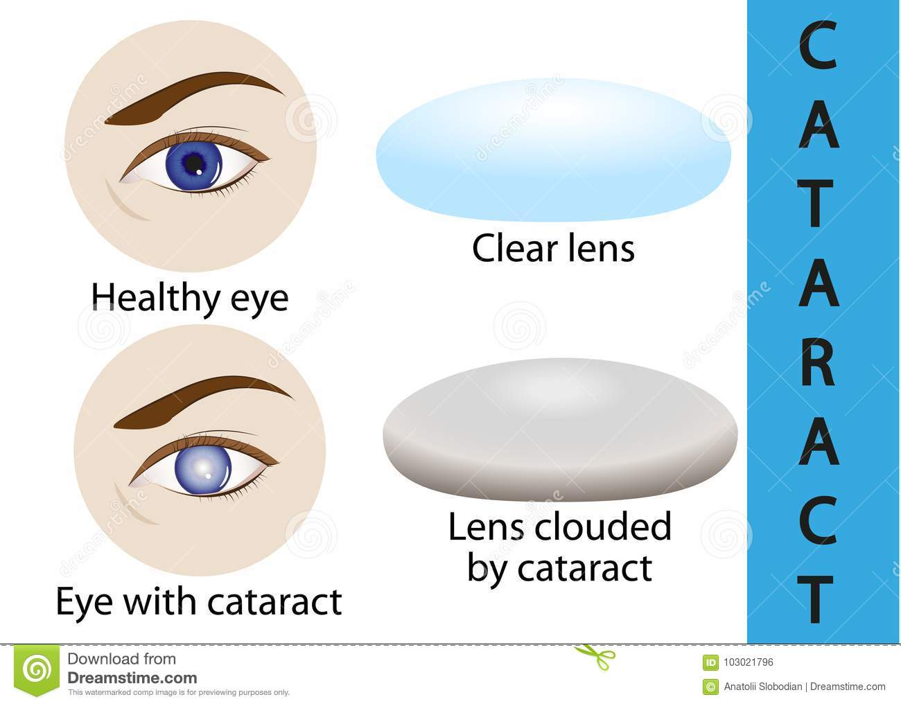 A Cataract Is An Clouding Crystalline Lens Inside The Eye Stock