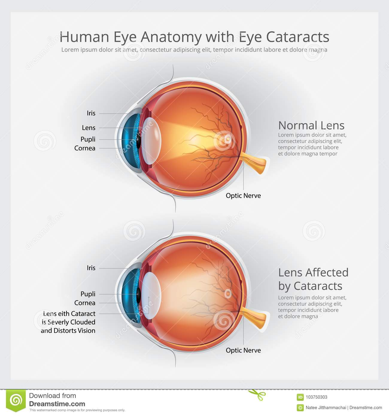 Cataracts Vision Disorder And Normal Eye Vision Anatomy Stock Vector ...