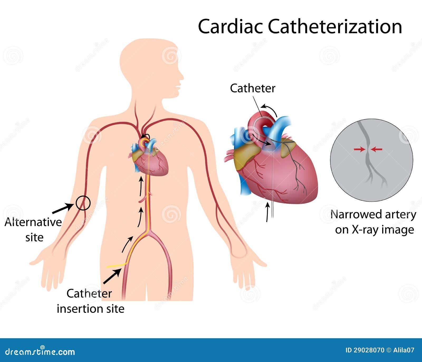 Cathéterisation cardiaque