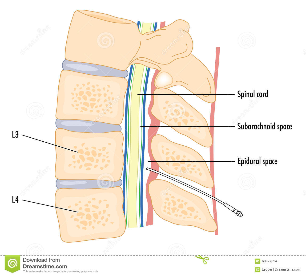 lumbar epidural steroid injection wikipedia