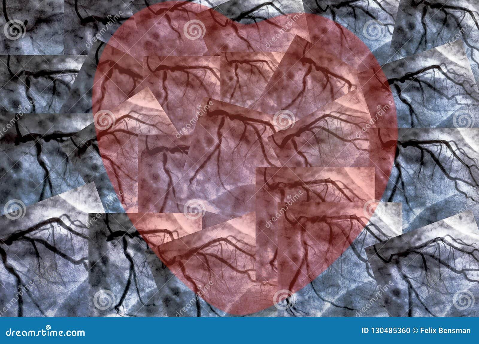 Catheteriseren Hartventriculografie en klein rood hart
