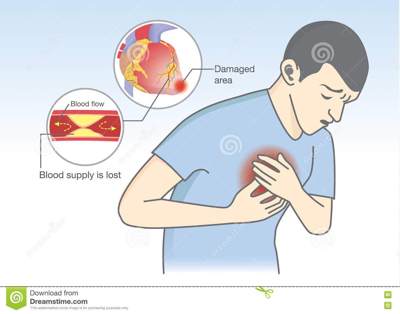 Cause of heart attack symptoms from blood flow get blocked stock cause of heart attack symptoms from blood flow get blocked ccuart Image collections