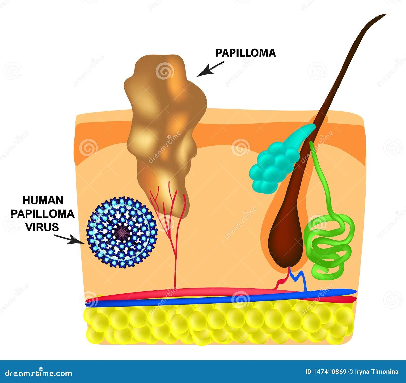papilom pleoapa inferioara helminthosporium oryzae tampon de perne