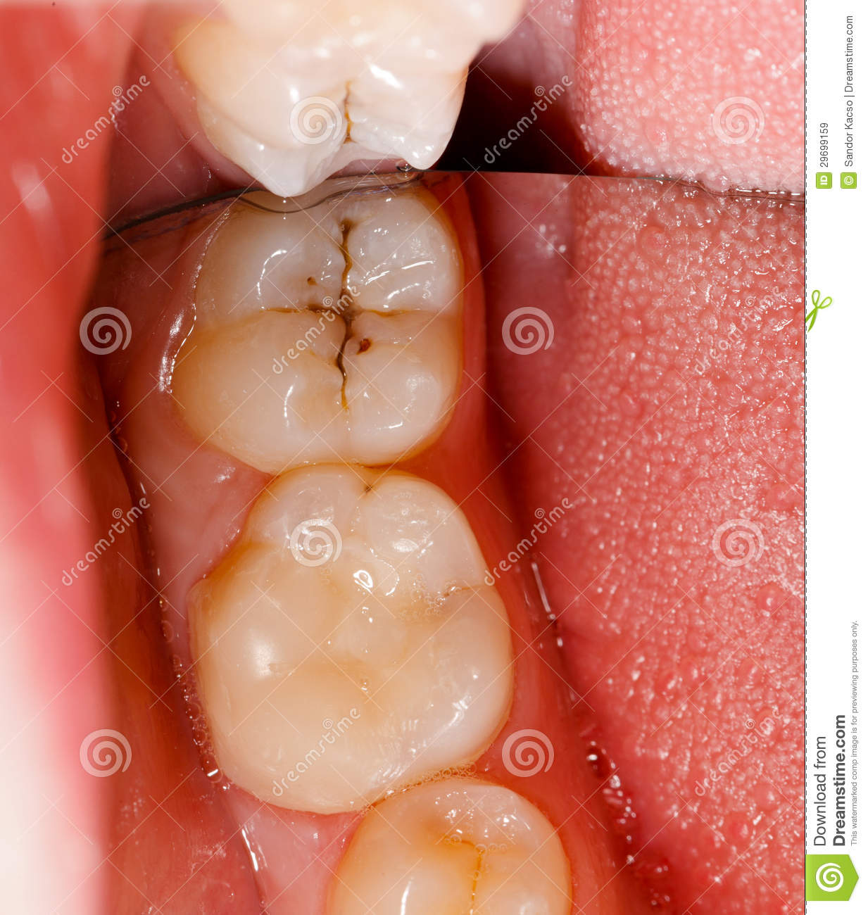 cavity and teeth stock image image of decay bacterial 29699159