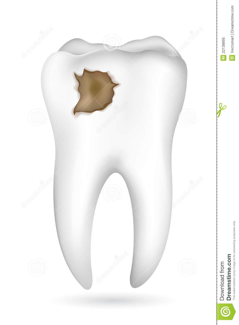 how to stop tooth pain from cavity