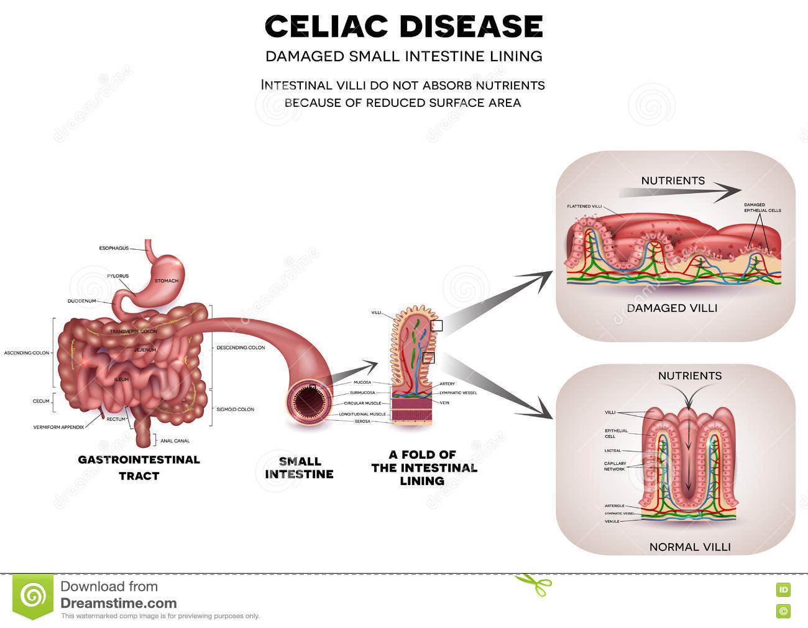 Celiac Disease Stock Vector Illustration Of Immune Bowel 71588054