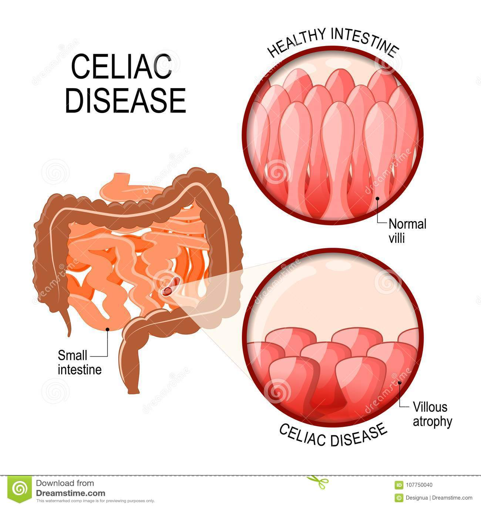 Diagram Of A Celiac 318yaunited