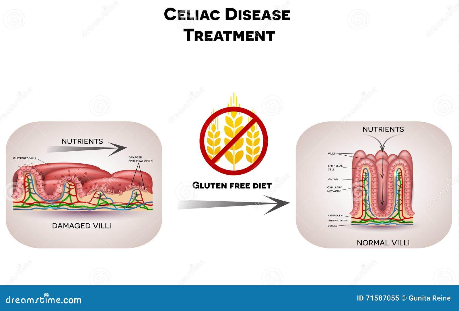 Celiac Disease Treatment Gluten Free Diet Stock Vector ...