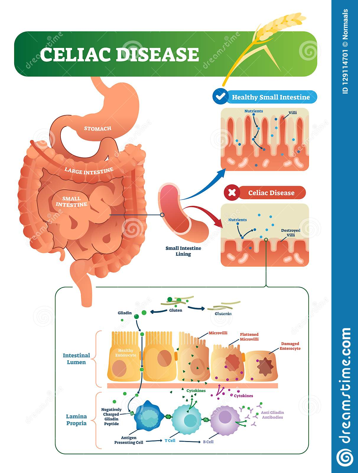 Celiac disease vector illustration. Labeled diagram with its structure