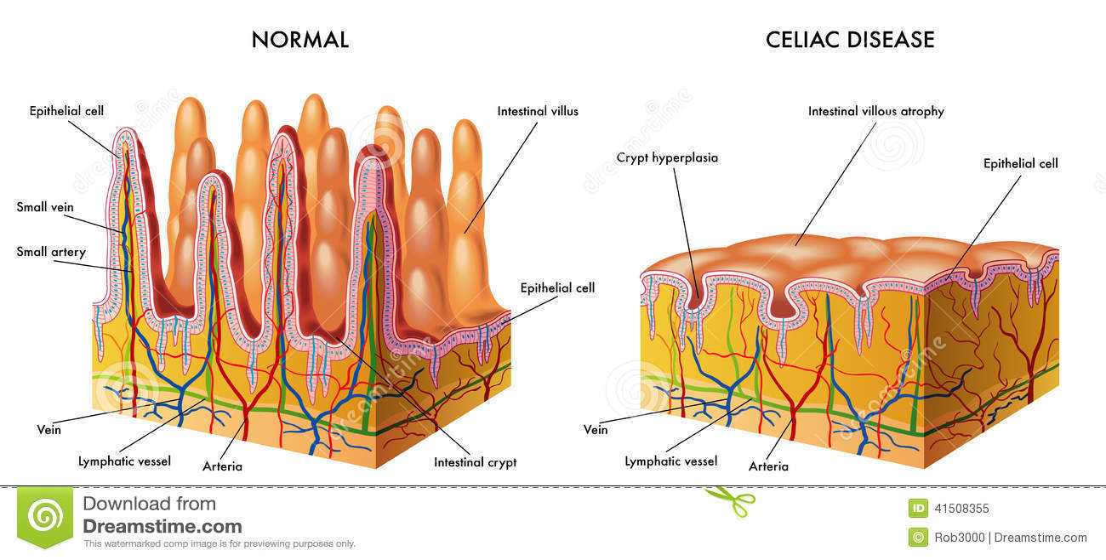 Celiac sjukdom