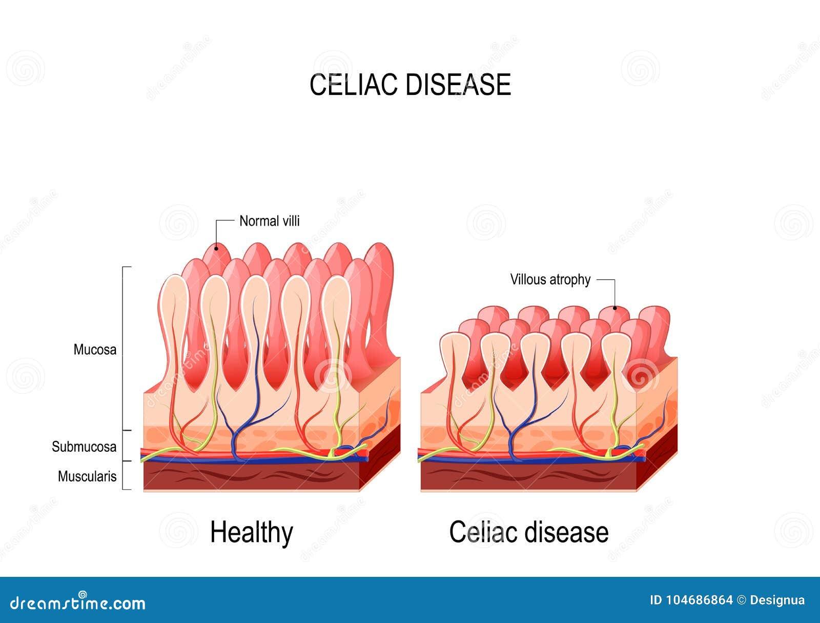 Celiachia Malattia celiaca