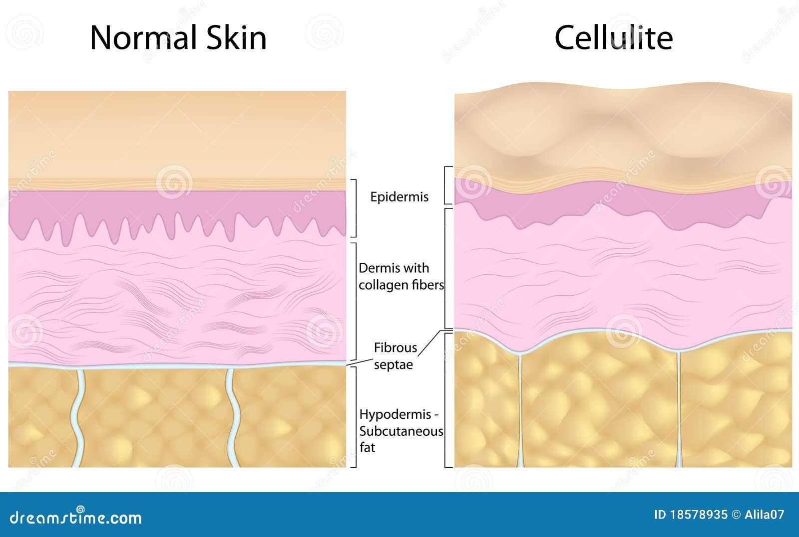 Cellulite δέρμα ομαλό εναντίον