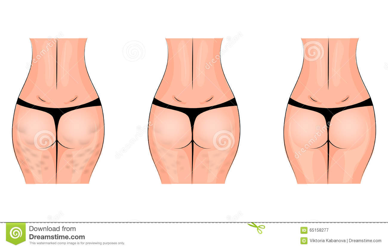 5 Exercises To Get Rid Of Cellulite On The Buttocks