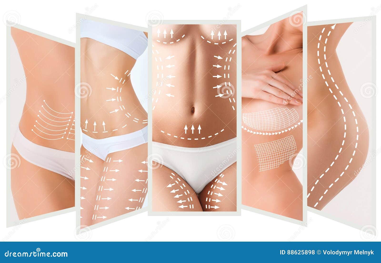 Celluliteborttagningsplanet Vit teckning på kropp för ung kvinna
