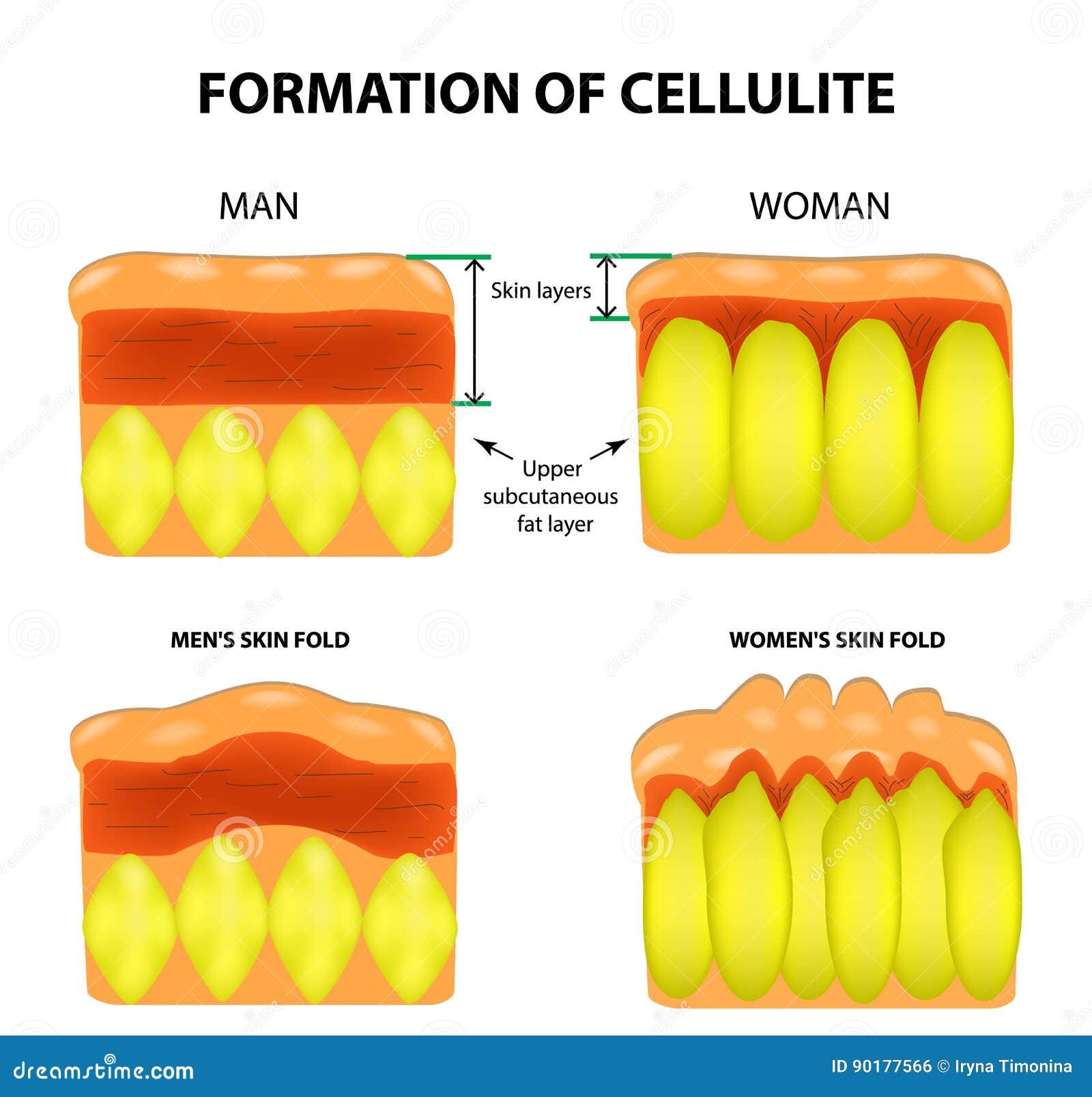 Celulite e envelhecimento da pele nos homens e nas mulheres Infographics Ilustração do vetor no fundo