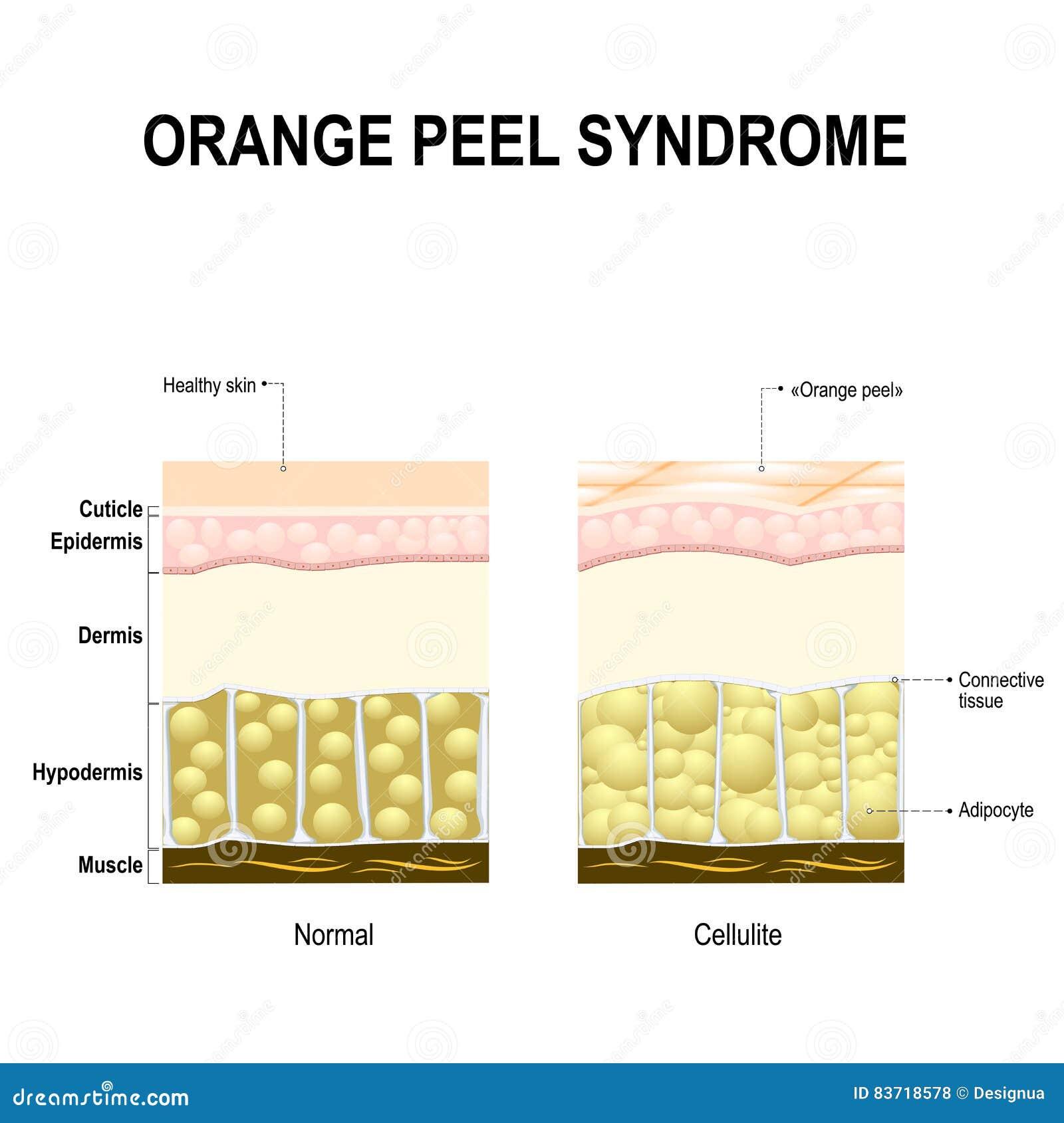 Celulitisów lub pomarańczowej łupy syndrom