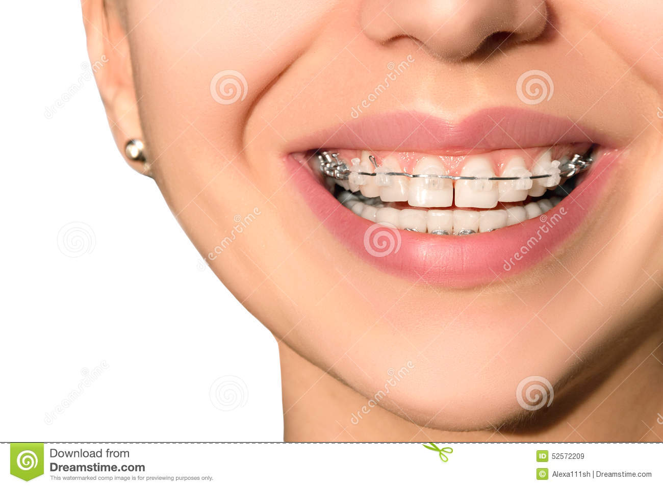 Ceramic dental braces teeth female smile stock photo for Bagues dentaires interieur
