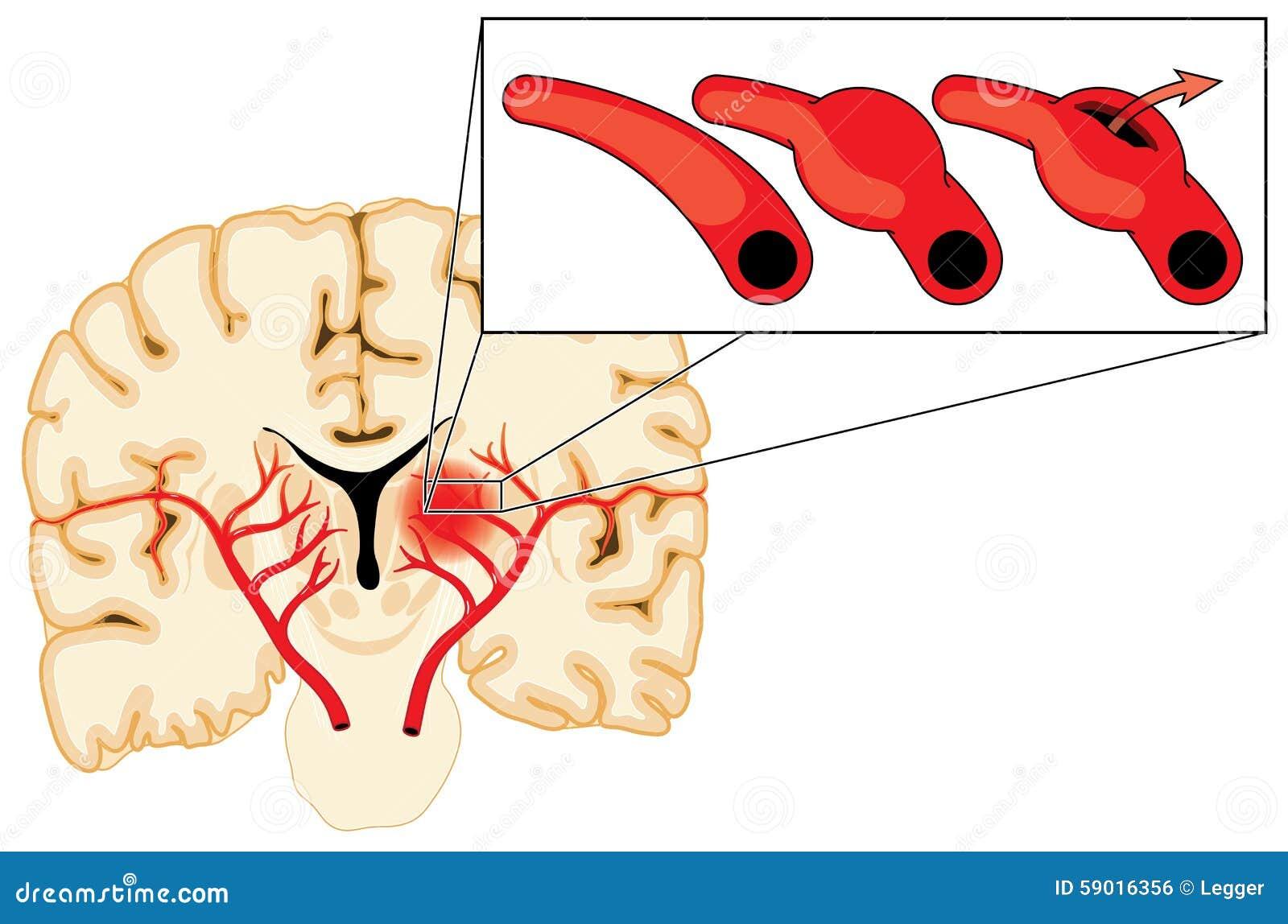 aneurysm i hjärnans blodkärl